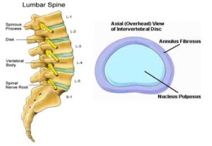 spinal injections 61 jpg w 300 h