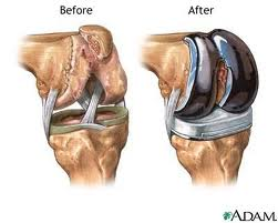 arthritis joint replacement surgery